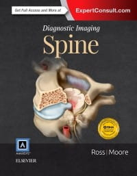 Diagnostic Imaging: Spine, 3rd Edition