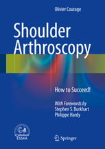 Shoulder Arthroscopy  How to Succeed!