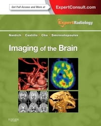 Imaging of the Brain, 1st Edition