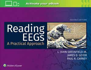 Reading EEGs: A Practical Approach Second edition