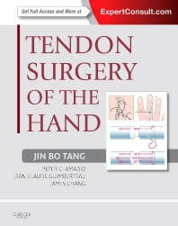 Tendon Surgery of the Hand: Expert Consult - Online and Print, 1e