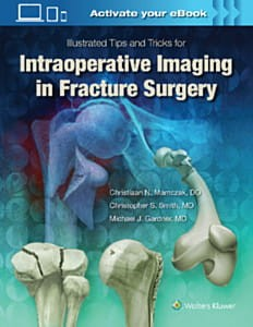 Illustrated Tips and Tricks for Intraoperative Imaging in Fracture Surgery, 1e