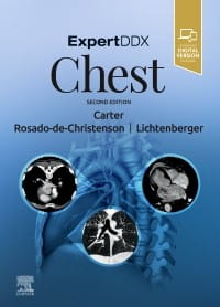 ExpertDDx: Chest, 2nd Edition