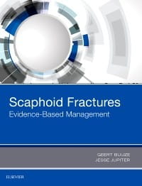 Scaphoid Fractures, 1st Edition