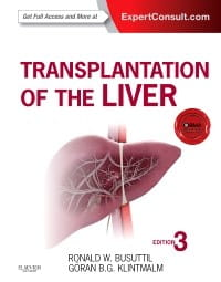 Transplantation of the Liver, 3rd Edition