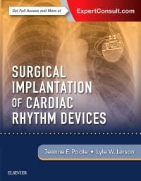 Surgical Implantation of Cardiac Rhythm Devices, 1st Edition