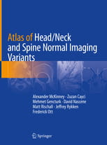 Atlas of Head/Neck and Spine Normal Imaging Variants