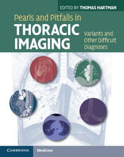 Pearls and Pitfalls in Thoracic Imaging Variants and Other Difficult Diagnoses
