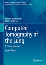 Computed Tomography of the Lung A Pattern Approach