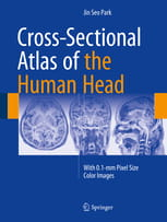Cross-Sectional Atlas of the Human Head With 0.1-mm pixel size color images