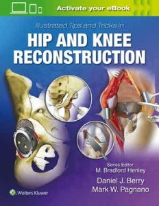 Illustrated Tips and Tricks in Hip and Knee Reconstructive and Replacement Surgery First edition