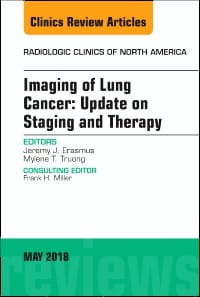 Lung Cancer, An Issue of Radiologic Clinics of North America, 1st Edition