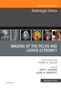 Imaging of the Pelvis and Lower Extremity, An Issue of Radiologic Clinics of North America, 1st Edition