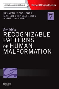 Smith's Recognizable Patterns of Human Malformation, 7e