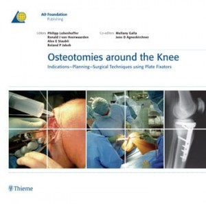 Osteotomies Around the Knee Indications - Planning - Surgical techniques using Plate Fixators