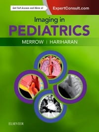 Imaging in Pediatrics, 1st Edition