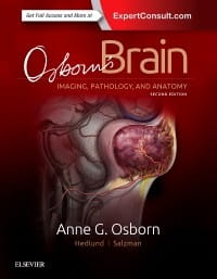 Osborn's Brain, 2nd Edition