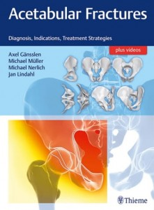 Acetabular Fractures Diagnosis, Indications, Treatment Strategies