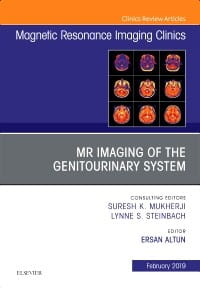 MRI of the Genitourinary System, An Issue of Magnetic Resonance Imaging Clinics of North America, 1st Edition
