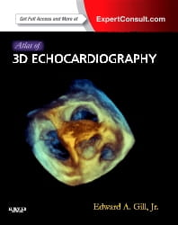 Atlas of 3D Echocardiography: Expert Consult - Online and Print