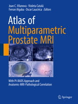 Atlas of Multiparametric Prostate MRI With PI-RADS Approach and Anatomic-MRI-Pathological Correlation