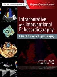 Intraoperative and Interventional Echocardiography, 2nd Edition Atlas of Transesophageal Imaging