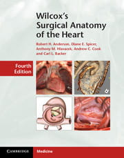 Wilcox's Surgical Anatomy of the Heart, 4e