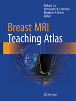 Breast MRI Teaching Atlas