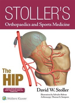 Stoller's Orthopaedics and Sports Medicine The Hip.jpg
