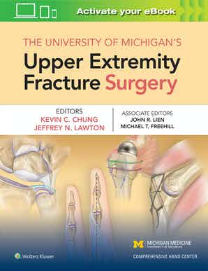 The University of Michigan's Upper Extremity Fracture Surgery.jpg