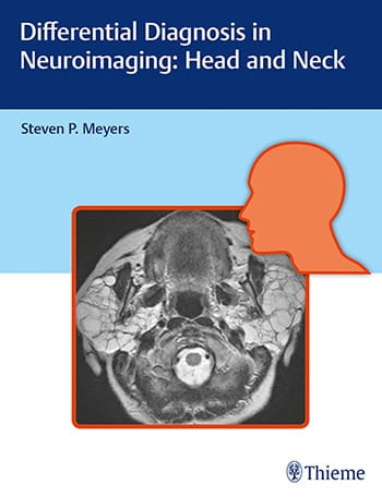 Differential Diagnosis in Neuroimaging.jpg
