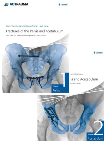 Fractures of the Pelvis and Acetabulum.jpg