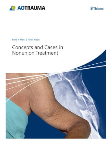 Concepts and Cases in Nonunion Treatment.jpg