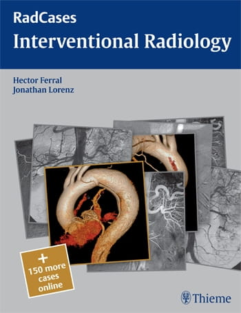 RadCases Interventional Radiology.jpg