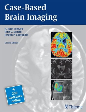 Case-Based Brain Imaging.jpg