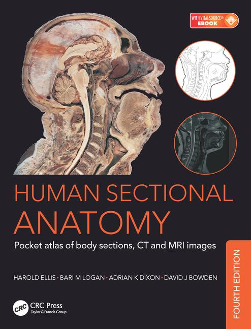 Human Sectional Anatomy: Pocket atlas of body sections, CT and MRI ...